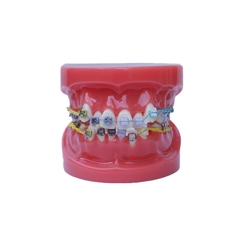 Dental Model Orthodontic Study Model